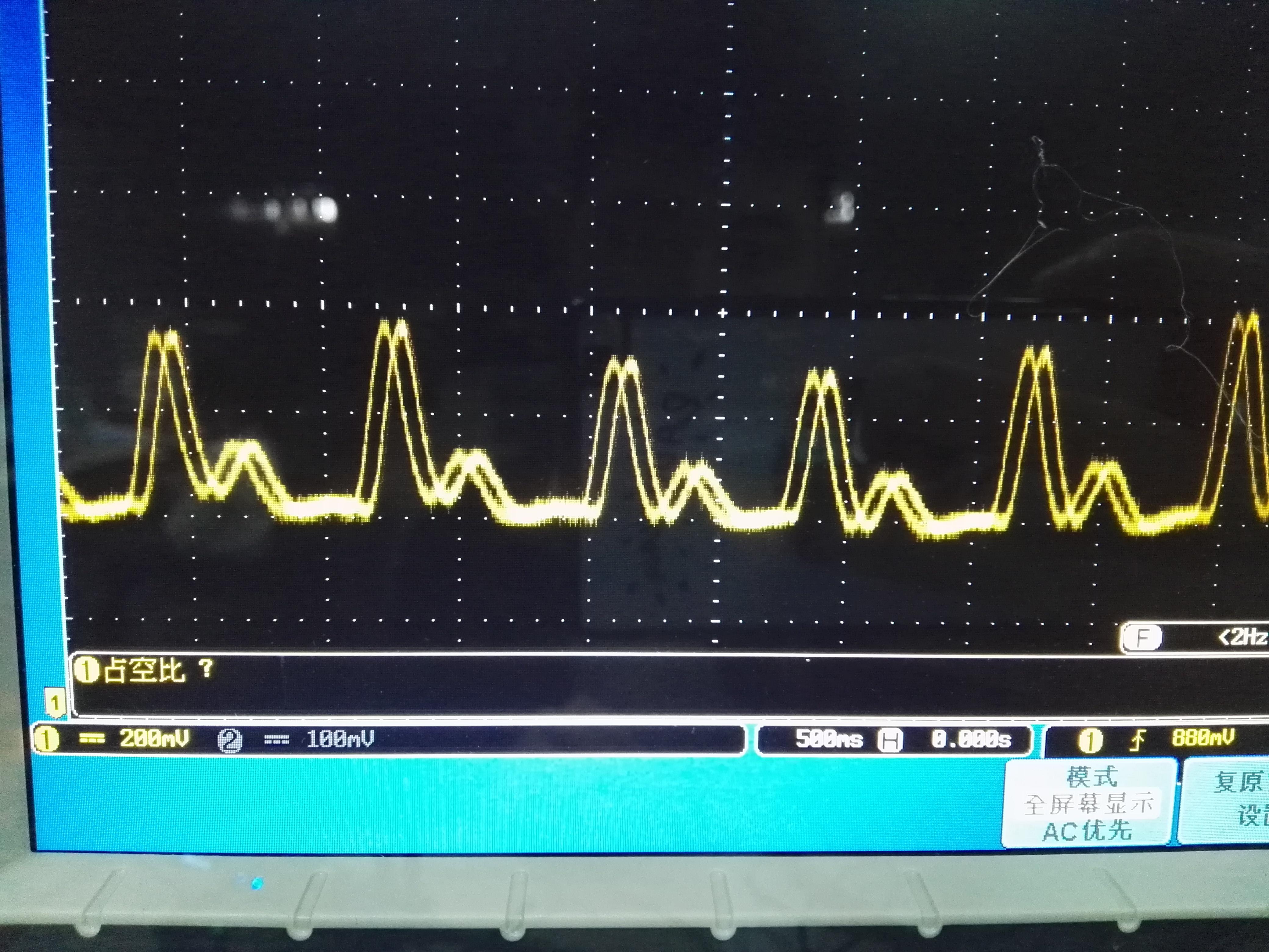 心率波形,有没有种医院做心电图的感觉